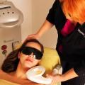 odstranjevanje dlak z laserjem