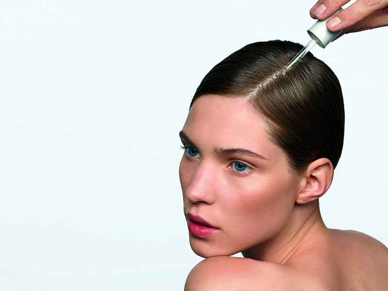vzroki za izpadanje las