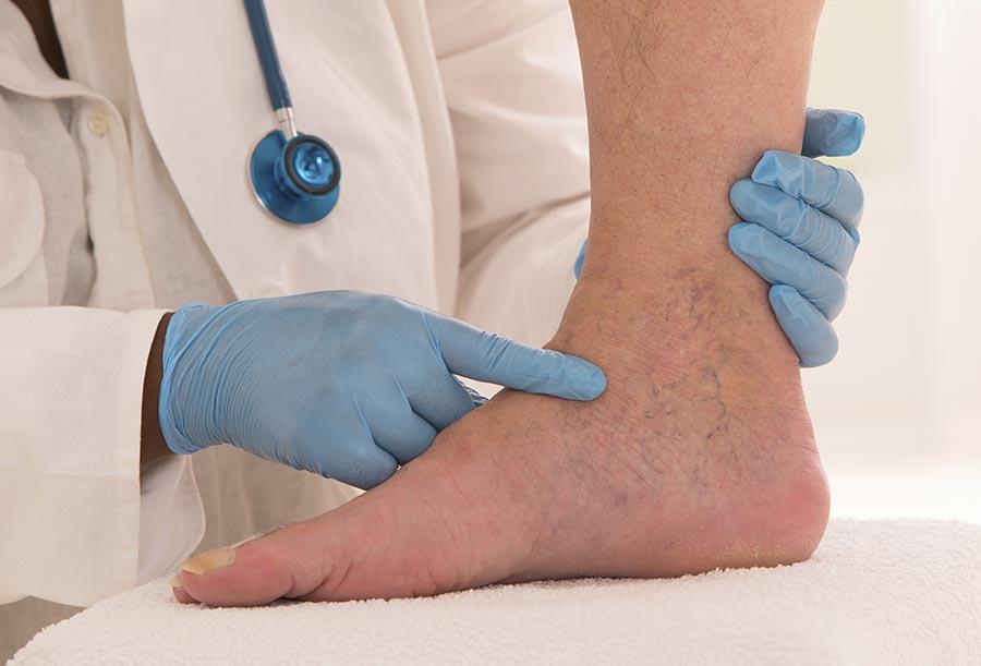 Kako se znebiti krčnih žil