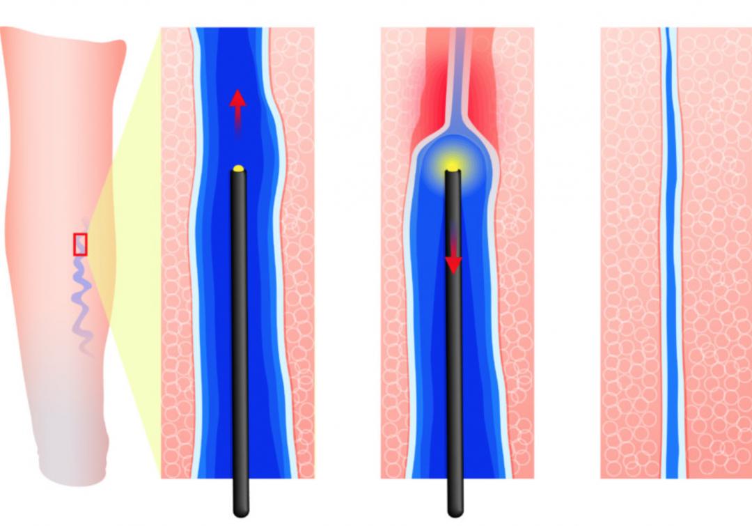 Krčne žile na nogah