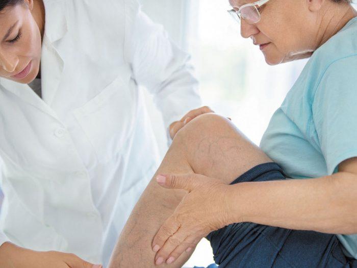 Skleroterapija - pregled
